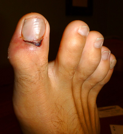 Sprained Big Toe Joint Treatment